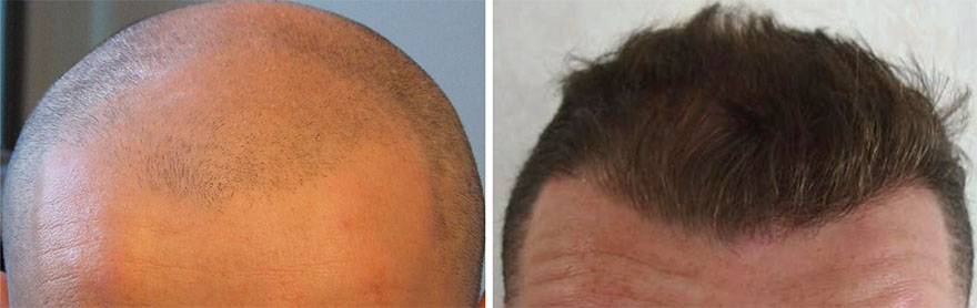 Hair Transplant Before and After Photos 01