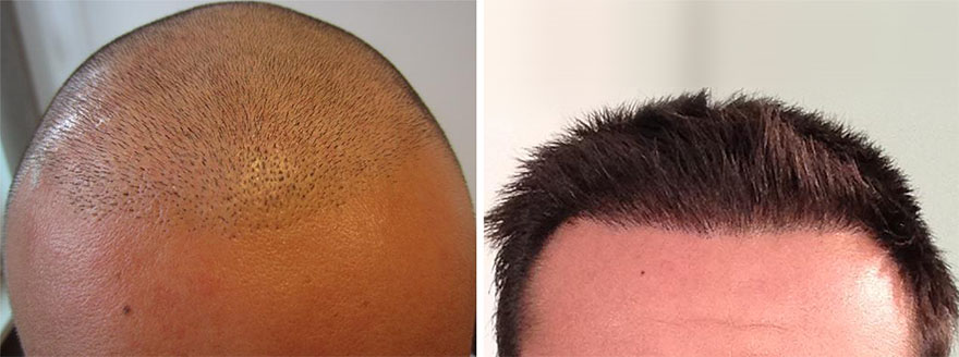 Hair Transplant Before and After Photos 03