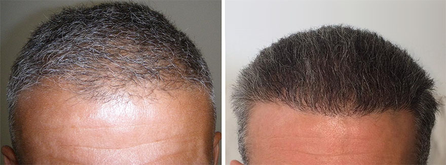 Hair Transplant Before and After Photos 04