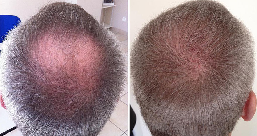 Hair Transplant Before and After Photos 05