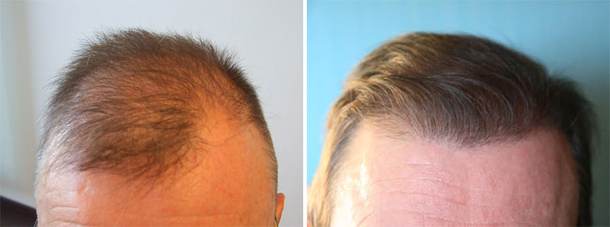 Hair Transplant Before and After Photos 06